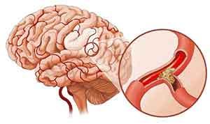 Стволовой инсульт: что это такое, прогноз выздоровления, последствия
